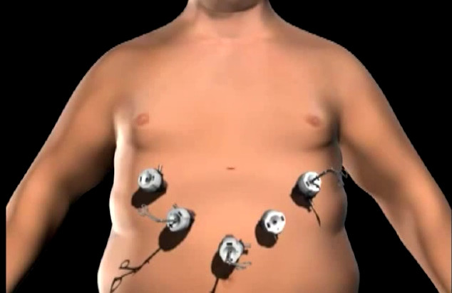cirugia bariatrica laparoscopica