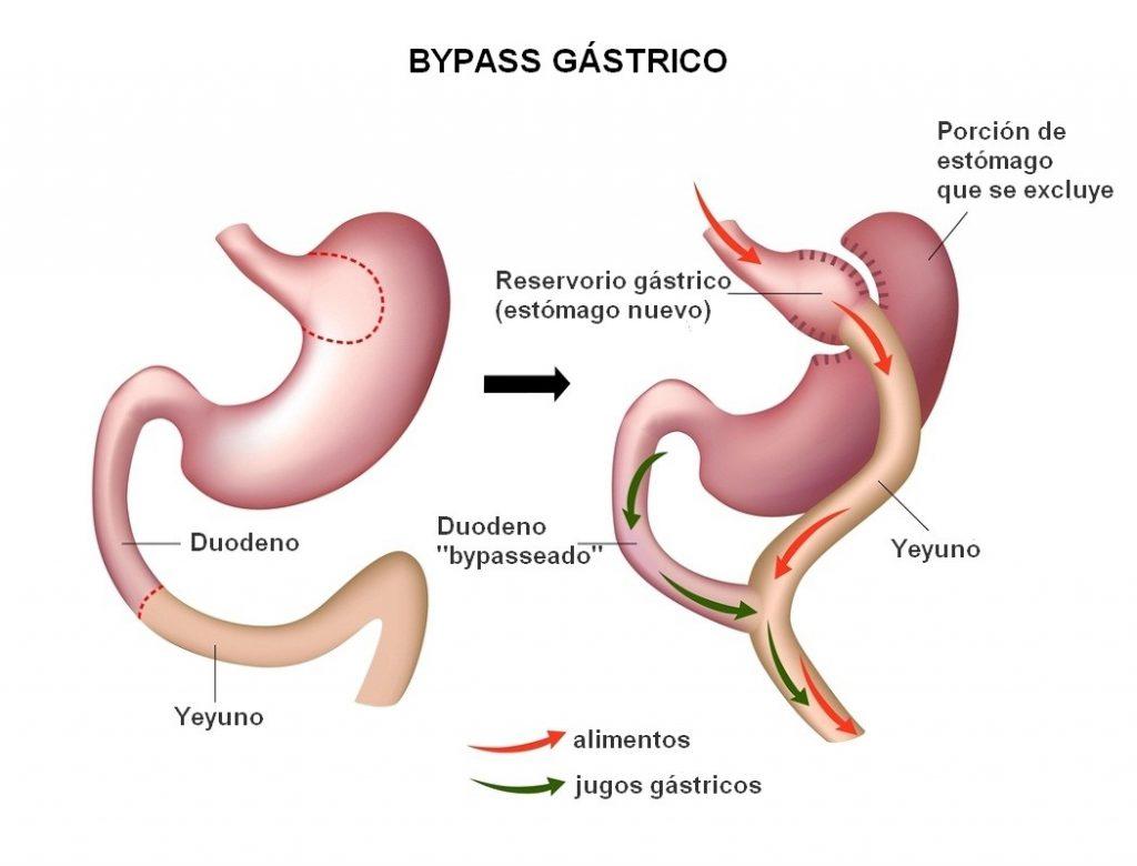 Bypass gastrico en honduras